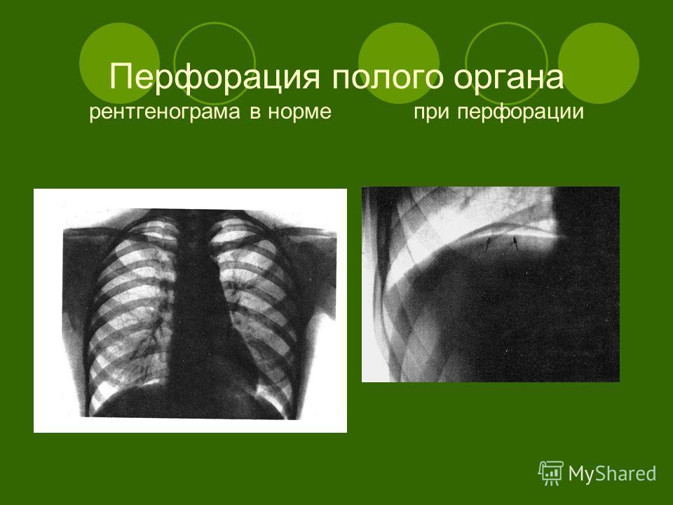 Перфорация полого органа рентгенограма в норме при перфорации