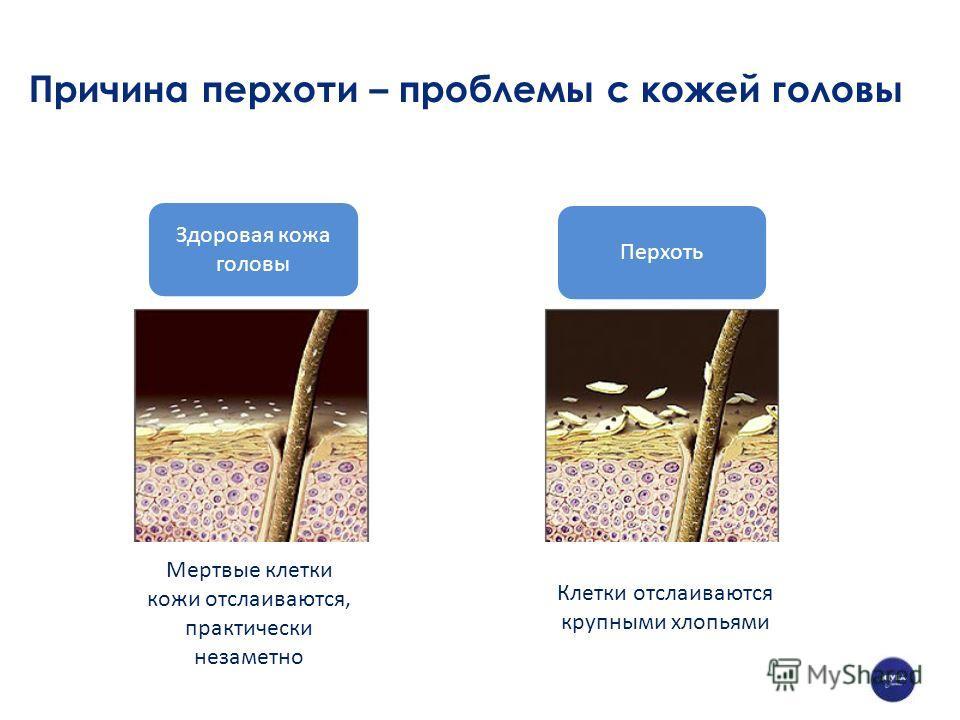 Причина перхоти – проблемы с кожей головы Здоровая кожа головы Перхоть Мертвые клетки кожи отслаиваются, практически незаметно Клетки отслаиваются крупными хлопьями