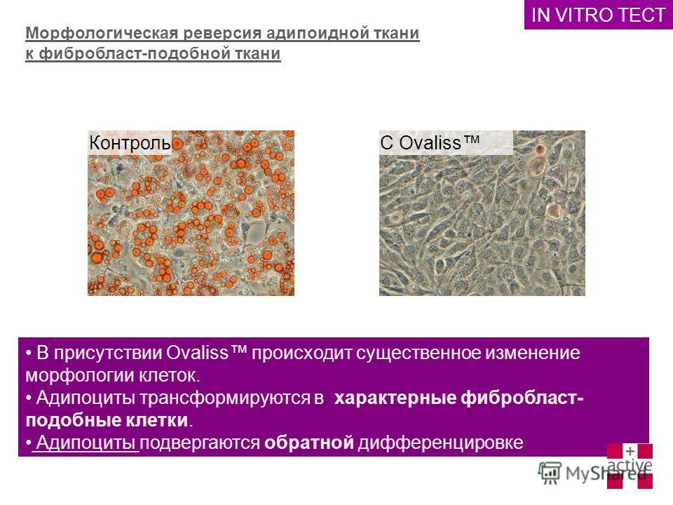 Морфологическая реверсия адипоидной ткани к фибробласт-подобной ткани В присутствии Ovaliss происходит существенное изменение морфологии клеток. Адипоциты трансформируются в характерные фибробласт- подобные клетки. Адипоциты подвергаются обратной диф