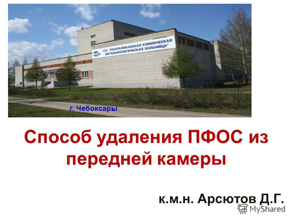 Способ удаления ПФОС из передней камеры к.м.н. Арсютов Д.Г. г. Чебоксары