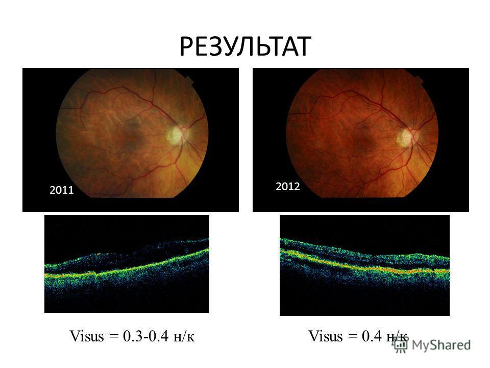 РЕЗУЛЬТАТ Visus = 0.3-0.4 н/к Visus = 0.4 н/к 2011 2012