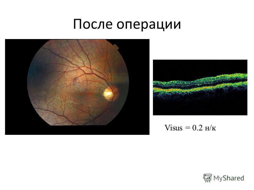 После операции Visus = 0.2 н/к