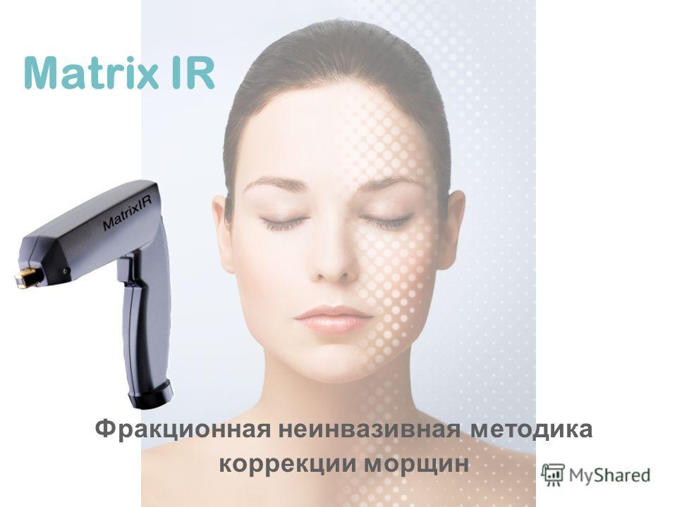Matrix IR Фракционная неинвазивная методика коррекции морщин