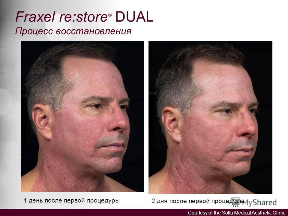 1 день после первой процедуры 2 дня после первой процедуры Fraxel re:store ® DUAL Процесс восстановления Courtesy of the Solta Medical Aesthetic Clinic