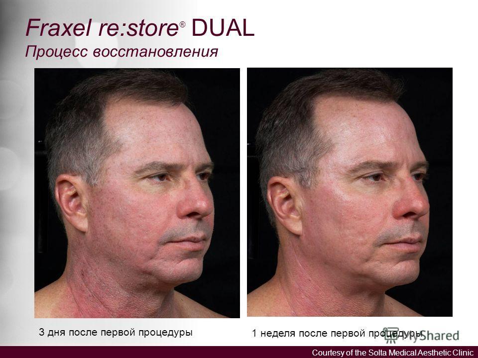 3 дня после первой процедуры 1 неделя после первой процедуры Fraxel re:store ® DUAL Процесс восстановления Courtesy of the Solta Medical Aesthetic Clinic