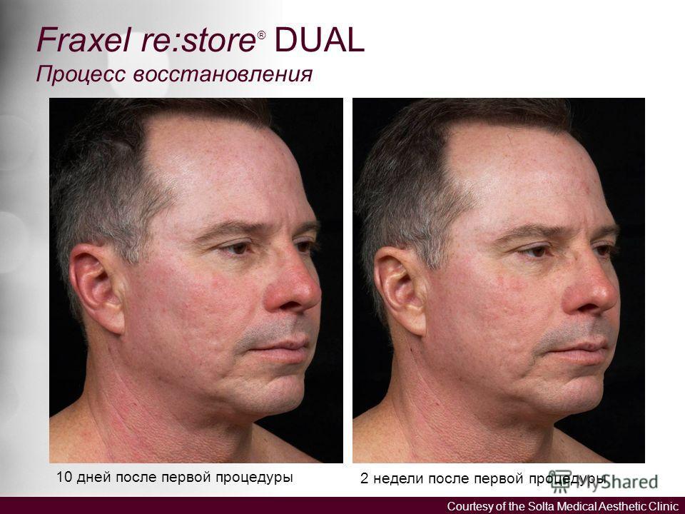 Fraxel re:store ® DUAL Процесс восстановления 10 дней после первой процедуры 2 недели после первой процедуры Courtesy of the Solta Medical Aesthetic Clinic