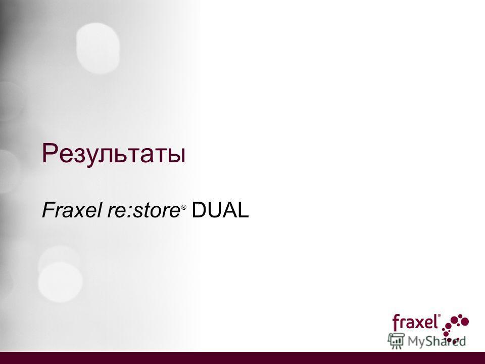 Результаты Fraxel re:store ® DUAL