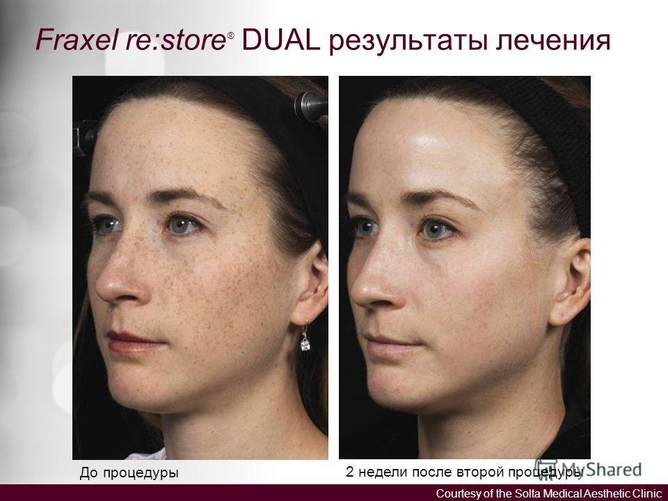 Fraxel re:store ® DUAL результаты лечения До процедуры 2 недели после второй процедуры Courtesy of the Solta Medical Aesthetic Clinic