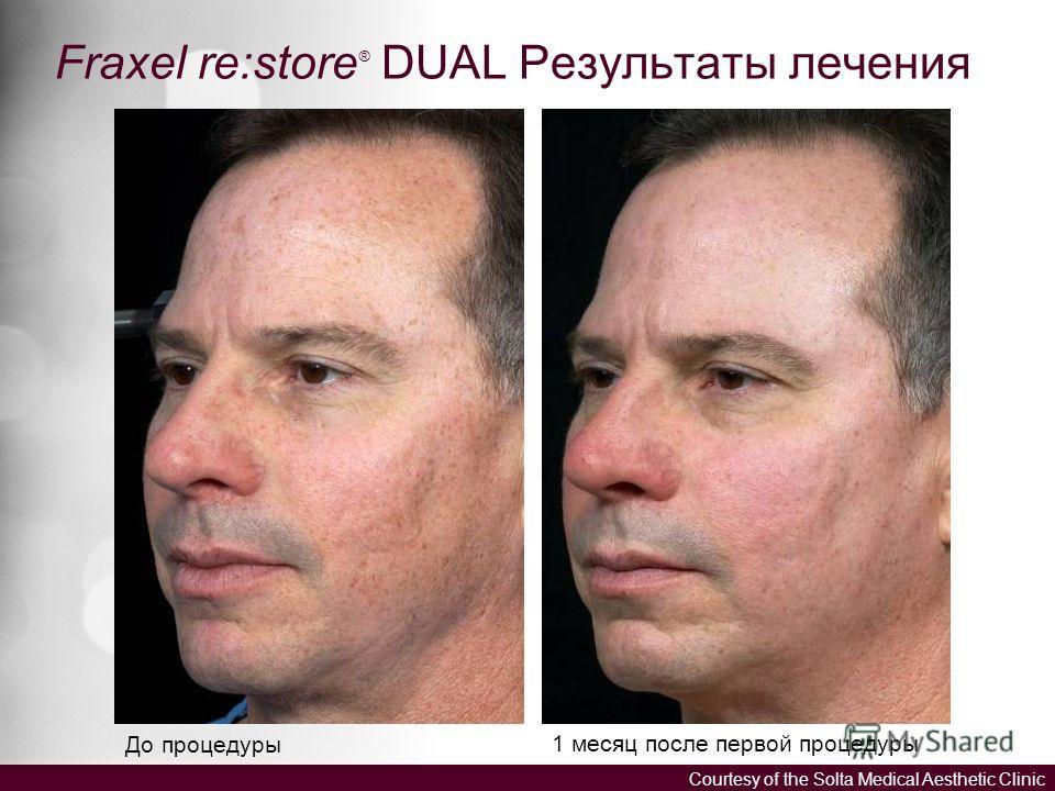 Fraxel re:store ® DUAL Результаты лечения До процедуры 1 месяц после первой процедуры Courtesy of the Solta Medical Aesthetic Clinic