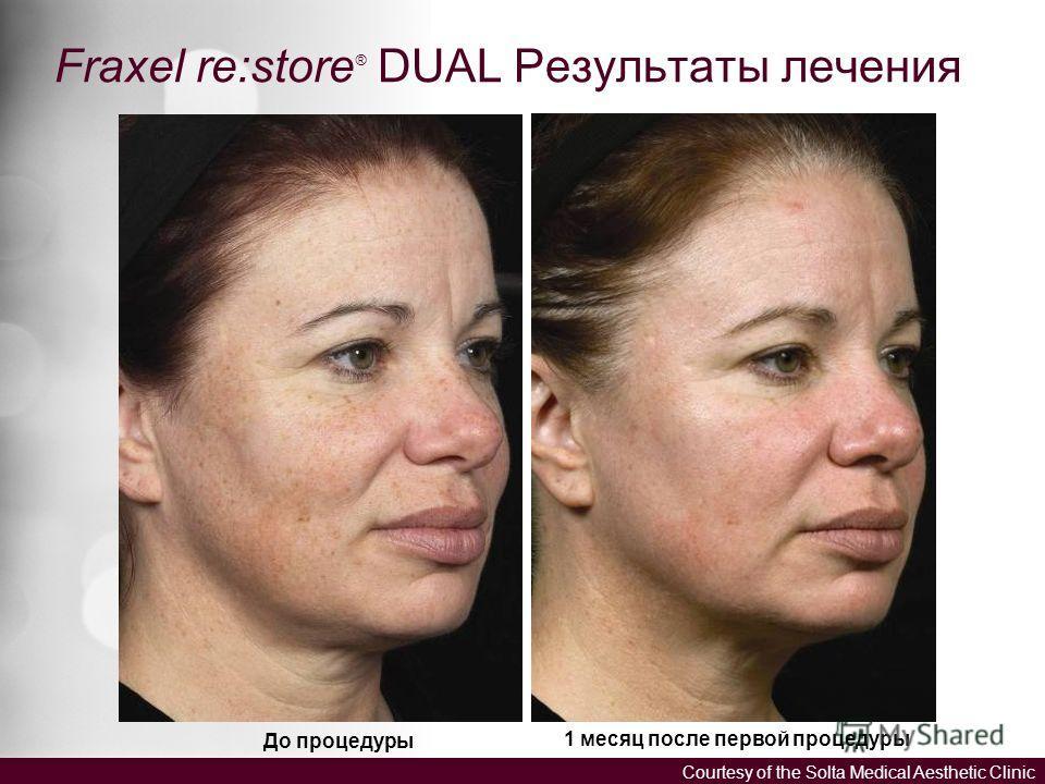 До процедуры 1 месяц после первой процедуры Courtesy of the Solta Medical Aesthetic Clinic Fraxel re:store ® DUAL Результаты лечения