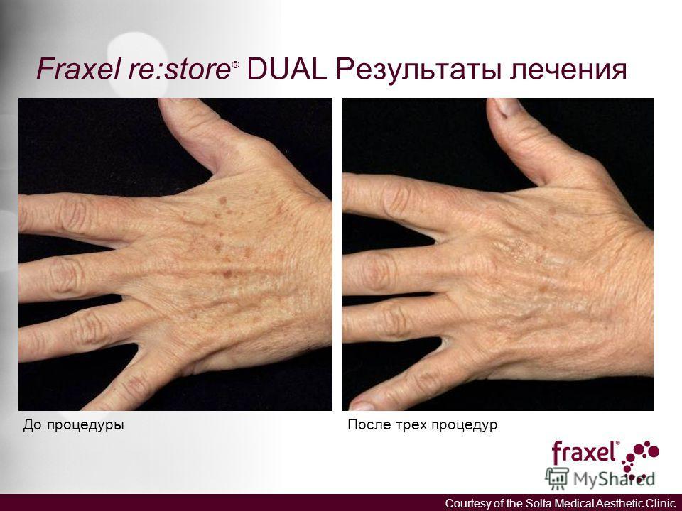 Fraxel re:store ® DUAL Результаты лечения До процедуры После трех процедур Courtesy of the Solta Medical Aesthetic Clinic