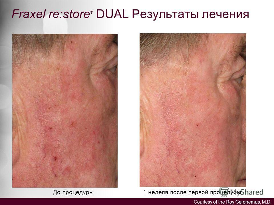 Fraxel re:store ® DUAL Результаты лечения До процедуры 1 неделя после первой процедуры Courtesy of the Roy Geronemus, M.D.