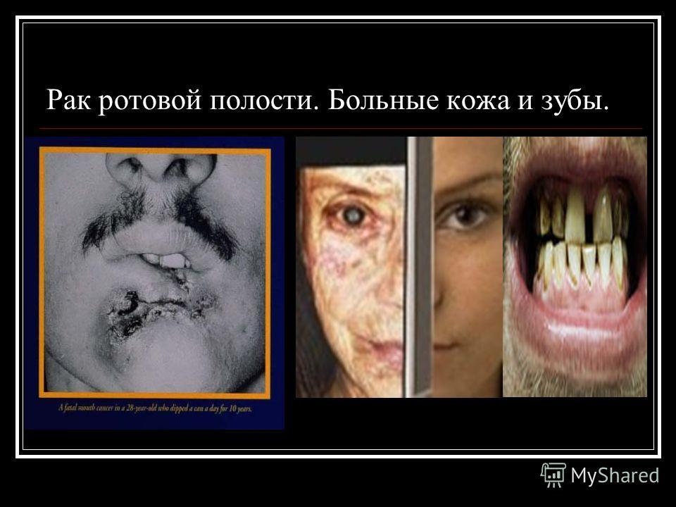 Рак ротовой полости. Больные кожа и зубы.