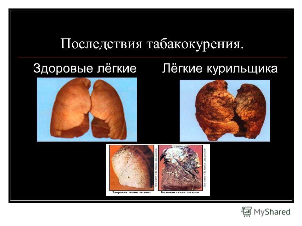 Последствия табакокурения. Здоровые лёгкие Лёгкие курильщика