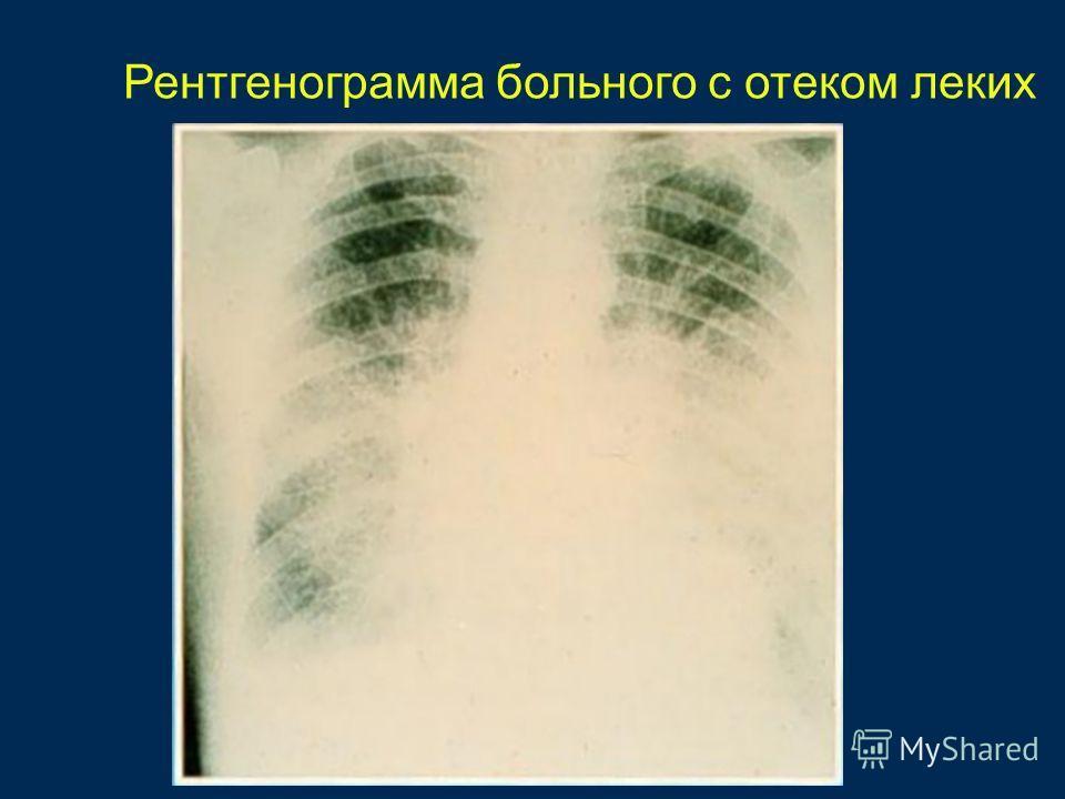 Рентгенограмма больного с отеком леких