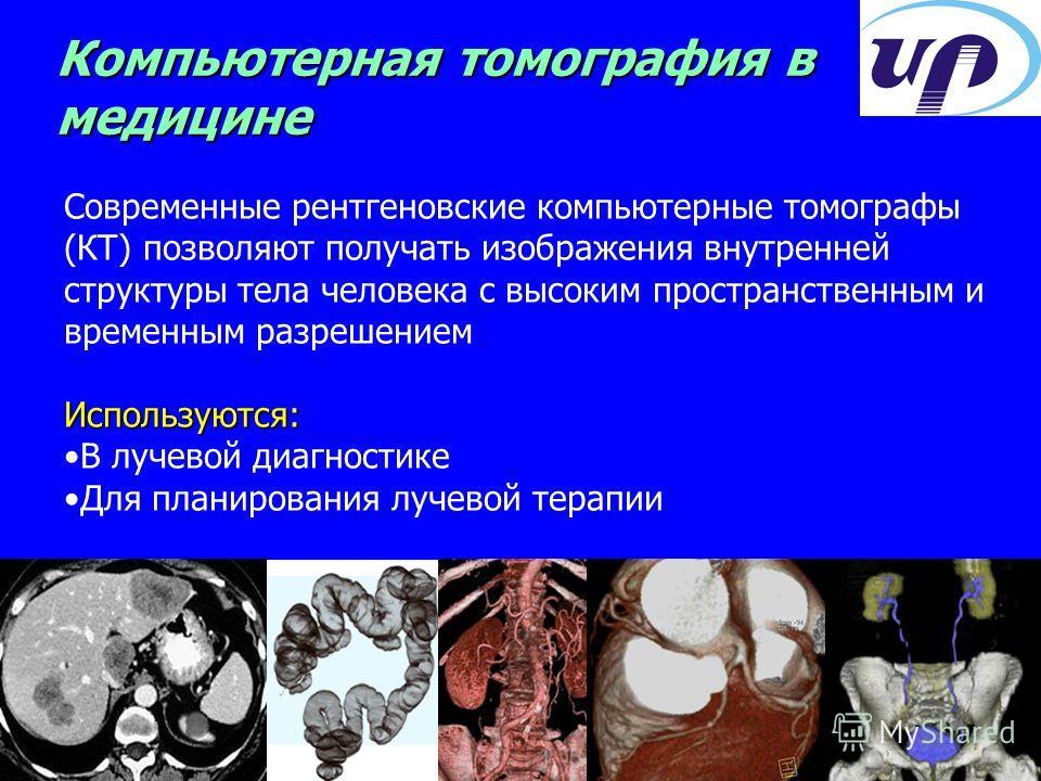 Современные рентгеновские компьютерные томографы (КТ) позволяют получать изображения внутренней структуры тела человека с высоким пространственным и временным разрешениемИспользуются: В лучевой диагностике Для планирования лучевой терапии Компьютерна