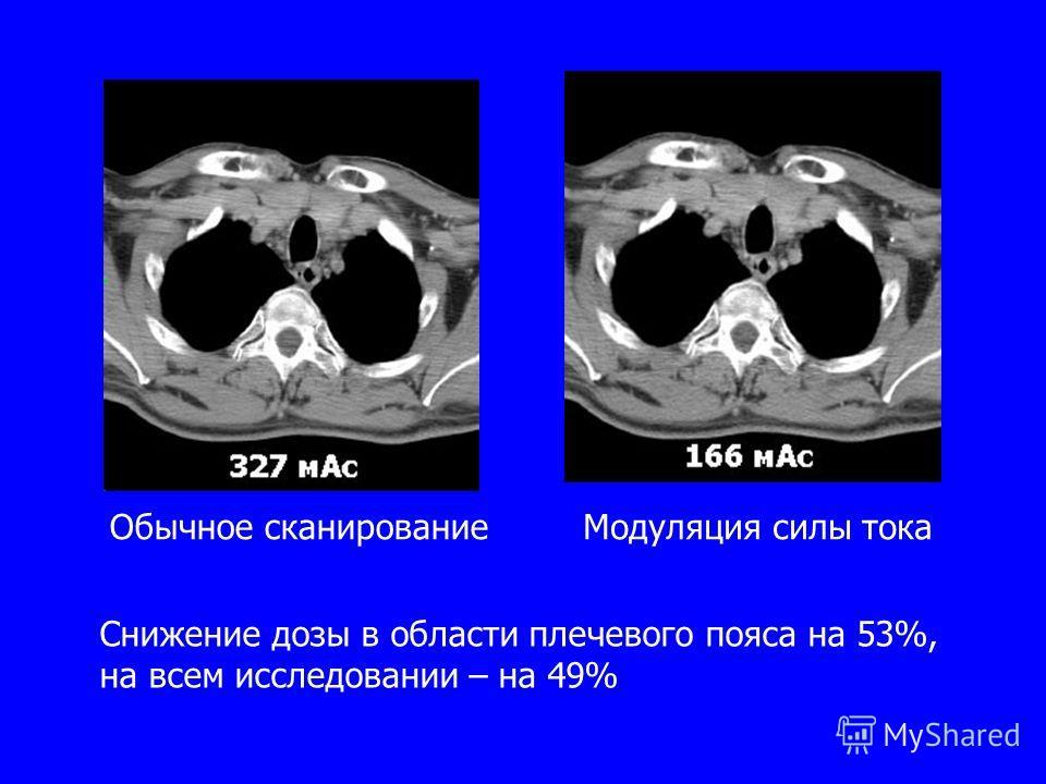 Обычное сканированиеМодуляция силы тока Снижение дозы в области плечевого пояса на 53%, на всем исследовании – на 49%