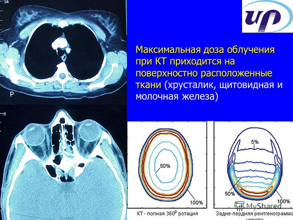 Максимальная доза облучения при КТ приходится на поверхностно расположенные ткани Максимальная доза облучения при КТ приходится на поверхностно расположенные ткани (хрусталик, щитовидная и молочная железа)
