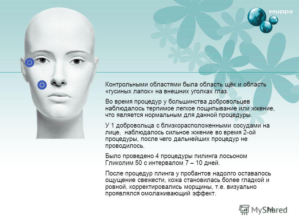 14 Контрольными областями была область щёк и область «гусиных лапок» на внешних уголках глаз. Во время процедур у большинства добровольцев наблюдалось терпимое легкое пощипывание или жжение, что является нормальным для данной процедуры. У 1 доброволь
