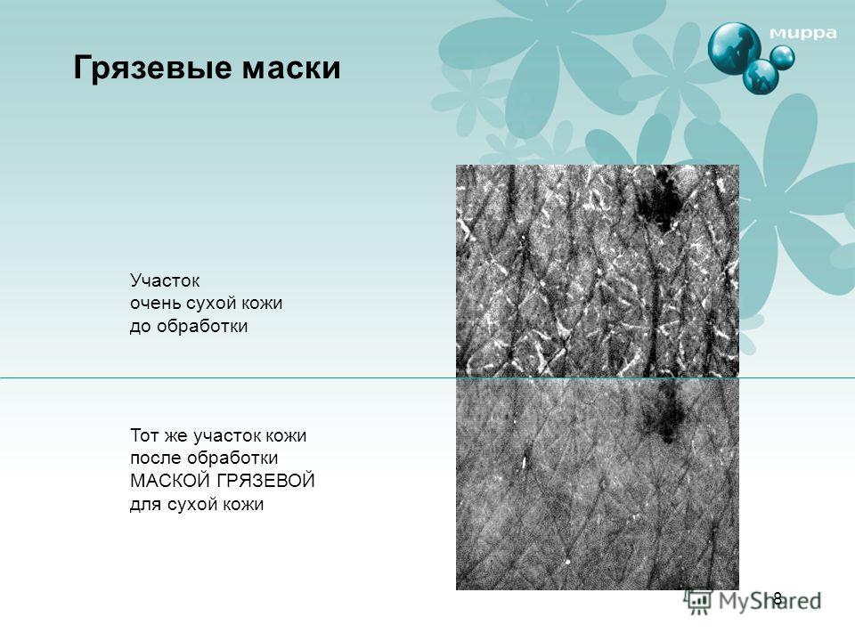 8 Грязевые маски Участок очень сухой кожи до обработки Тот же участок кожи после обработки МАСКОЙ ГРЯЗЕВОЙ для сухой кожи