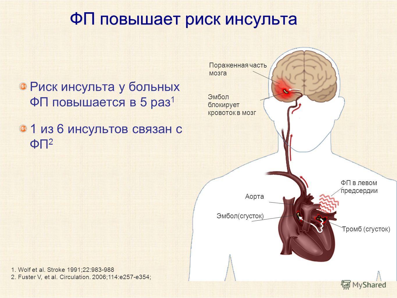 ФП повышает риск инсульта Риск инсульта у больных ФП повышается в 5 раз 1 1 из 6 инсультов связан с ФП 2 1. Wolf et al. Stroke 1991;22:983-988 2. Fuster V, et al. Circulation. 2006;114:e257-e354; Пораженная часть мозга Эмбол блокирует кровоток в мозг