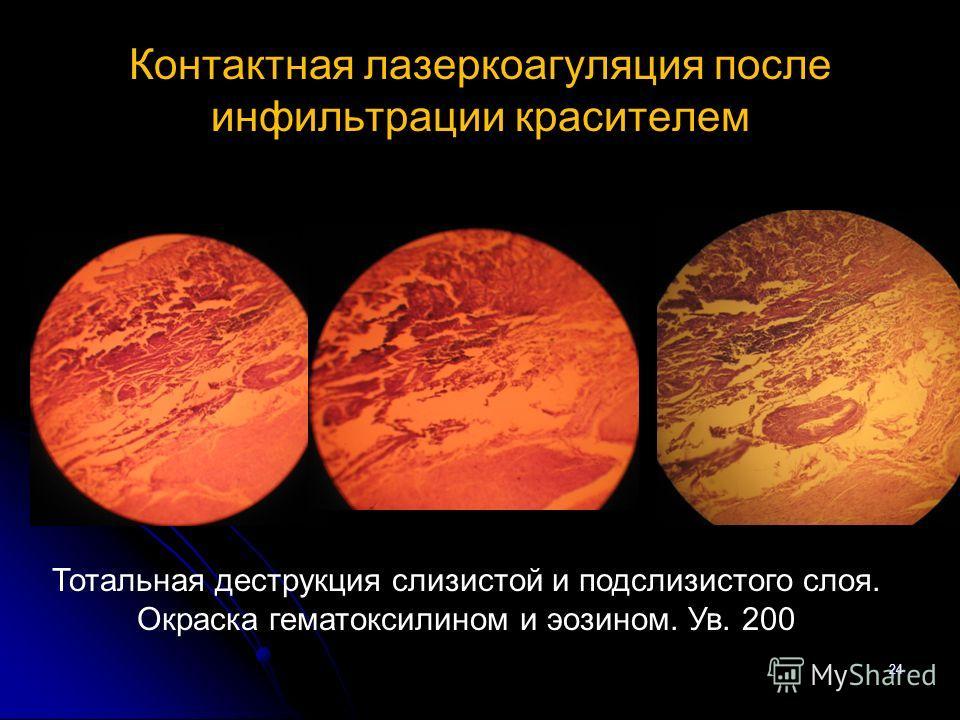 Контактная лазеркоагуляция после инфильтрации красителем 24 Тотальная деструкция слизистой и подслизистого слоя. Окраска гематоксилином и эозином. Ув. 200