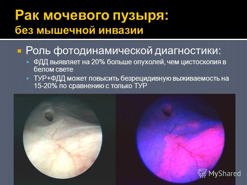 Роль фотодинамической диагностики: ФДД выявляет на 20% больше опухолей, чем цистоскопия в белом свете ТУР+ФДД может повысить безрецидивную выживаемость на 15-20% по сравнению с только ТУР