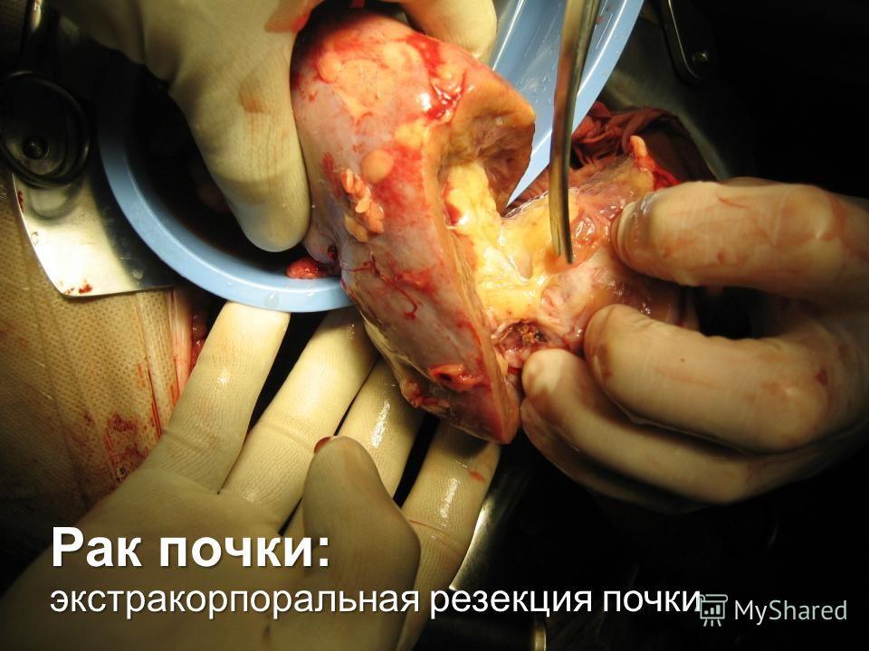 Рак почки: экстракорпоральная резекция почки