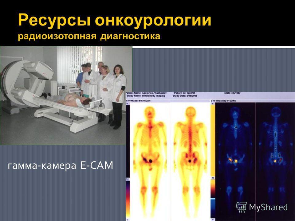 гамма-камера E-CAM
