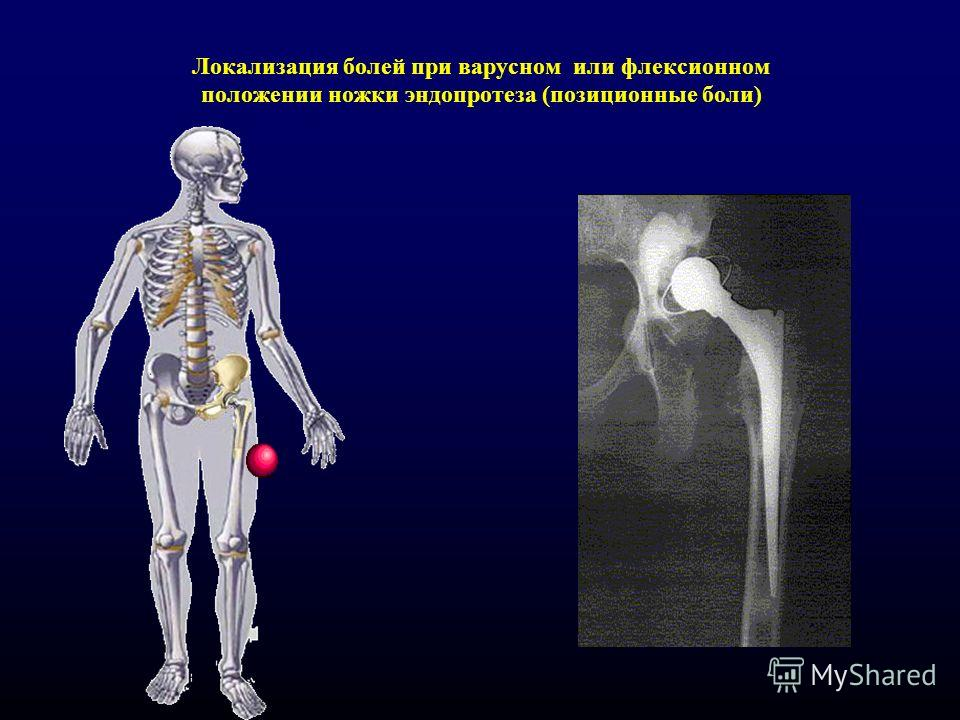Локализация болей при варусном или флексионном положении ножки эндопротеза (позиционные боли)