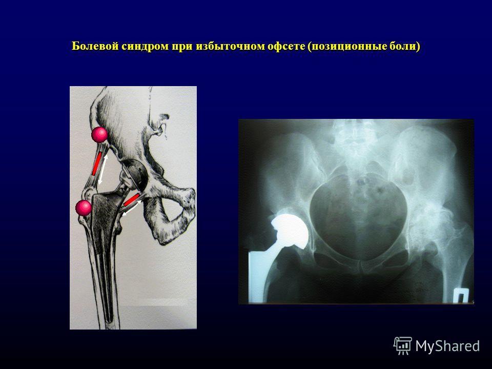 Болевой синдром при избыточном офсете (позиционные боли)