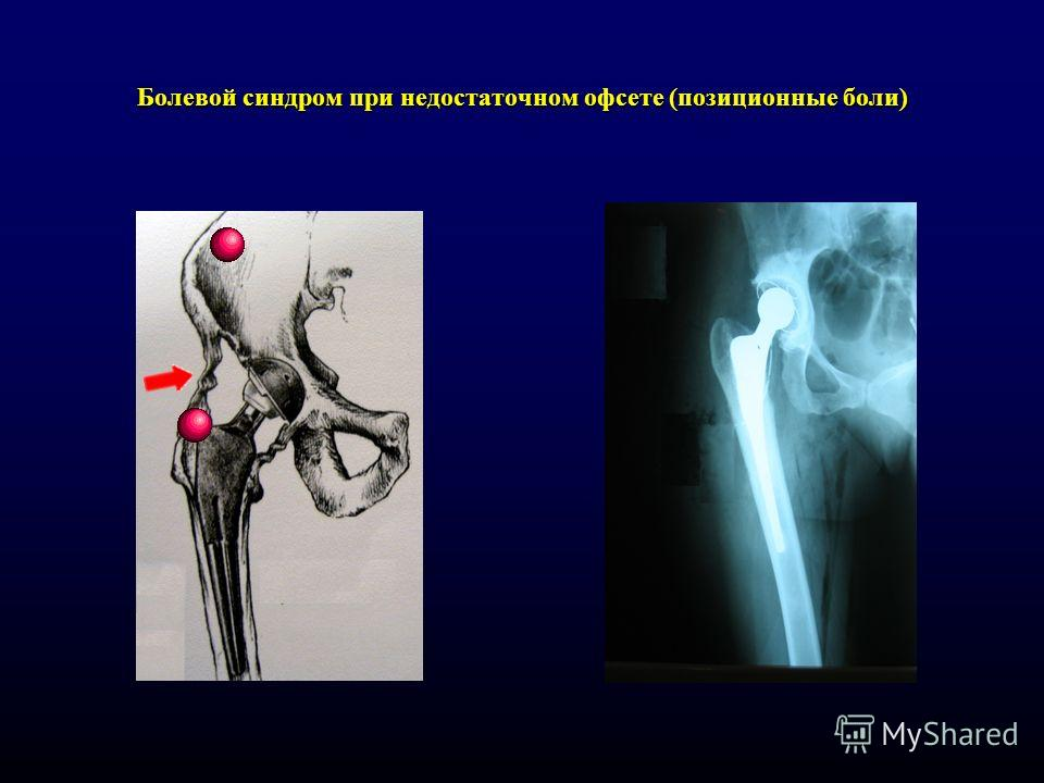 Болевой синдром при недостаточном офсете (позиционные боли)