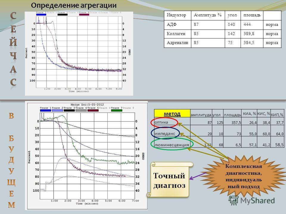 Определение агрегации ИндукторАмплитуда %уголплощадь АДФ87140444норма Коллаген85142389,8норма Адреналин8575384,5норма метод амплитудауголплощадь КИА, %КИС, % КИП,% оптика 87125357,526,438,437,7 импеданс 20107355,060,064,0 люминесценция 1,6168 6,557,1