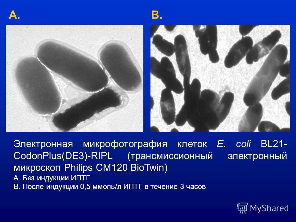Электронная микрофотография клеток E. coli BL21- CodonPlus(DE3)-RIPL (трансмиссионный электронный микроскоп Philips CM120 BioTwin) А. Без индукции ИПТГ В. После индукции 0,5 ммоль/л ИПТГ в течение 3 часов А.В.