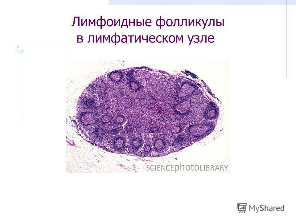 Лимфоидные фолликулы в лимфатическом узле