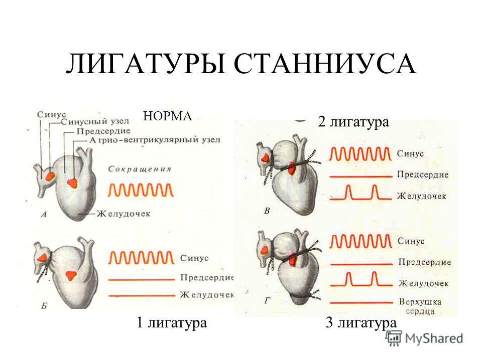 ЛИГАТУРЫ СТАННИУСА НОРМА 1 лигатура 2 лигатура 3 лигатура