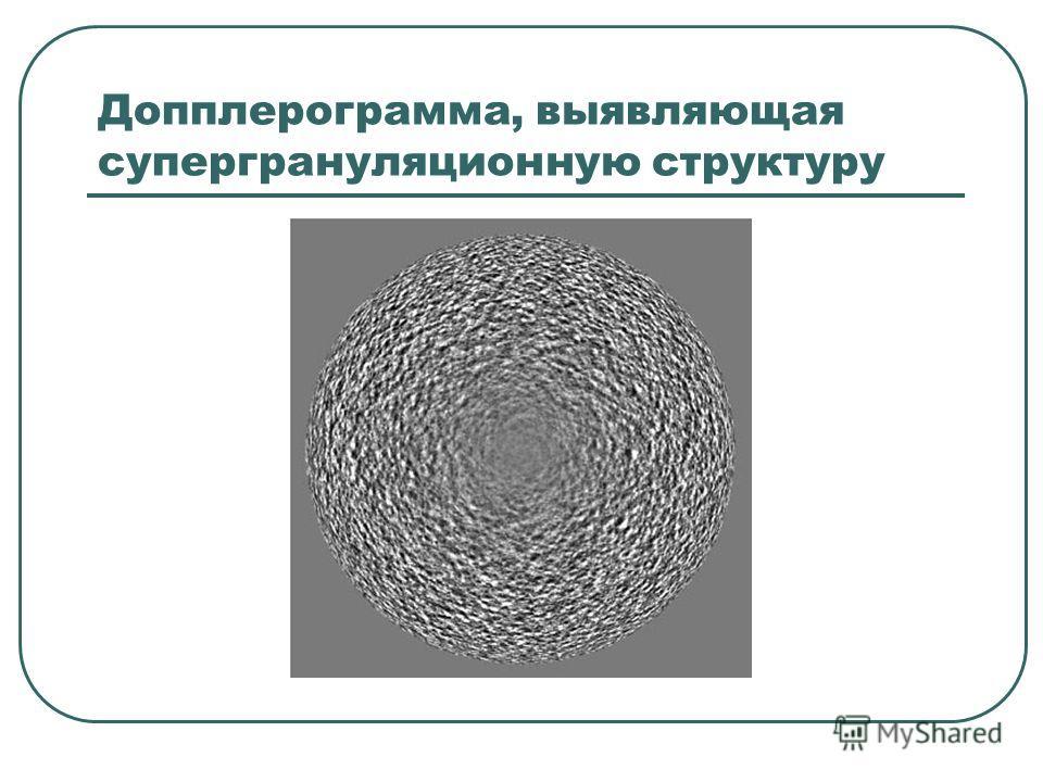 Допплерограмма, выявляющая супергрануляционную структуру