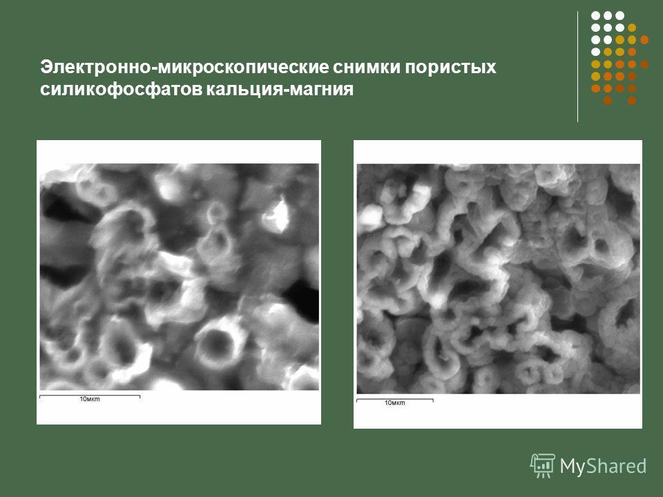 Электронно-микроскопические снимки пористых силикофосфатов кальция-магния