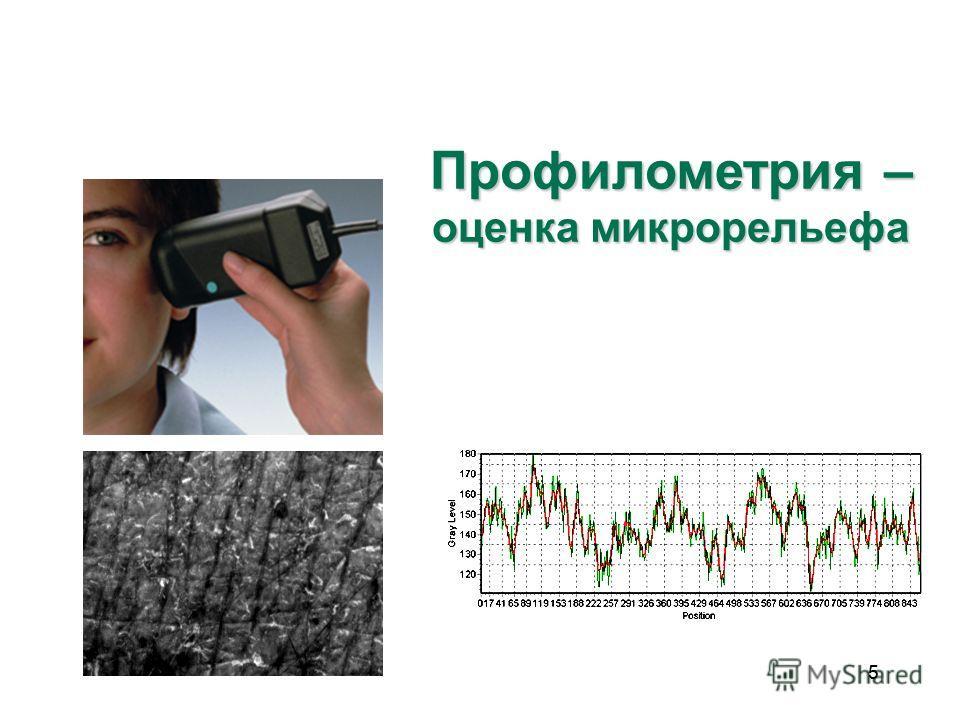 55 Профилометрия – оценка микрорельефа
