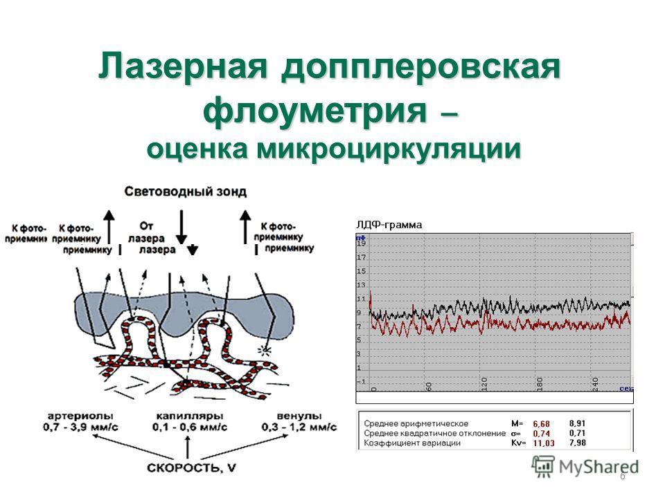 6 Лазерная допплеровская флоуметрия – оценка микроциркуляции