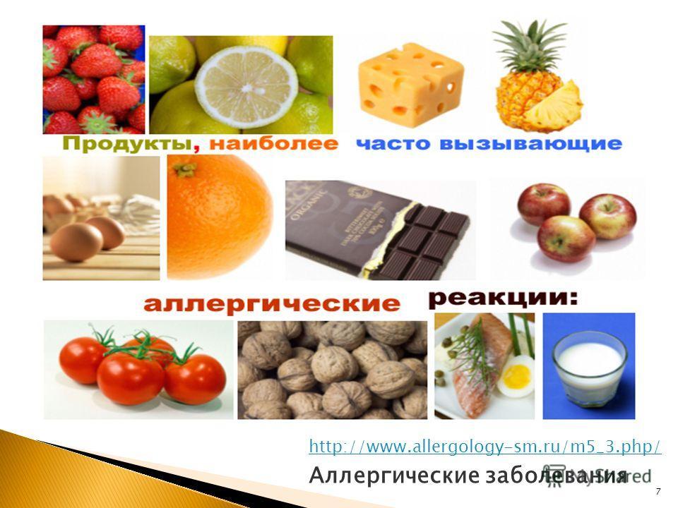 7 Аллергические заболевания http://www.allergology-sm.ru/m5_3.php/