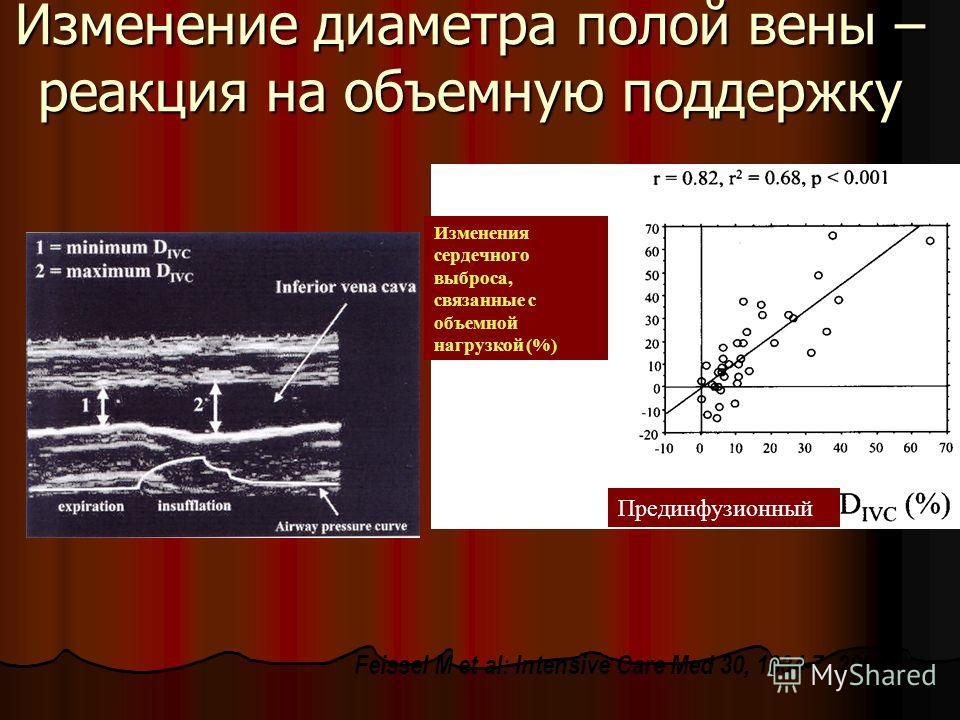 Изменение диаметра полой вены – реакция на объемную поддержку Feissel M et al: Intensive Care Med 30, 1834-7, 2004 Изменения сердечного выброса, связанные с объемной нагрузкой (%) Прединфузионный