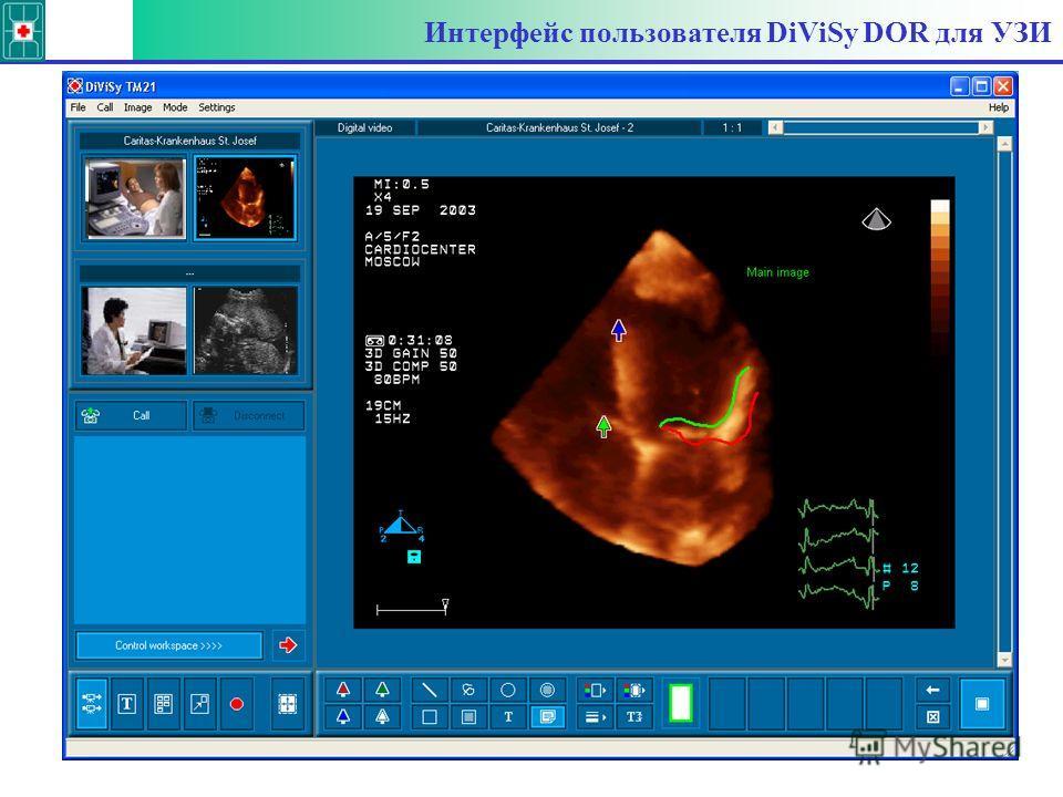 Интерфейс пользователя DiViSy DOR для УЗИ