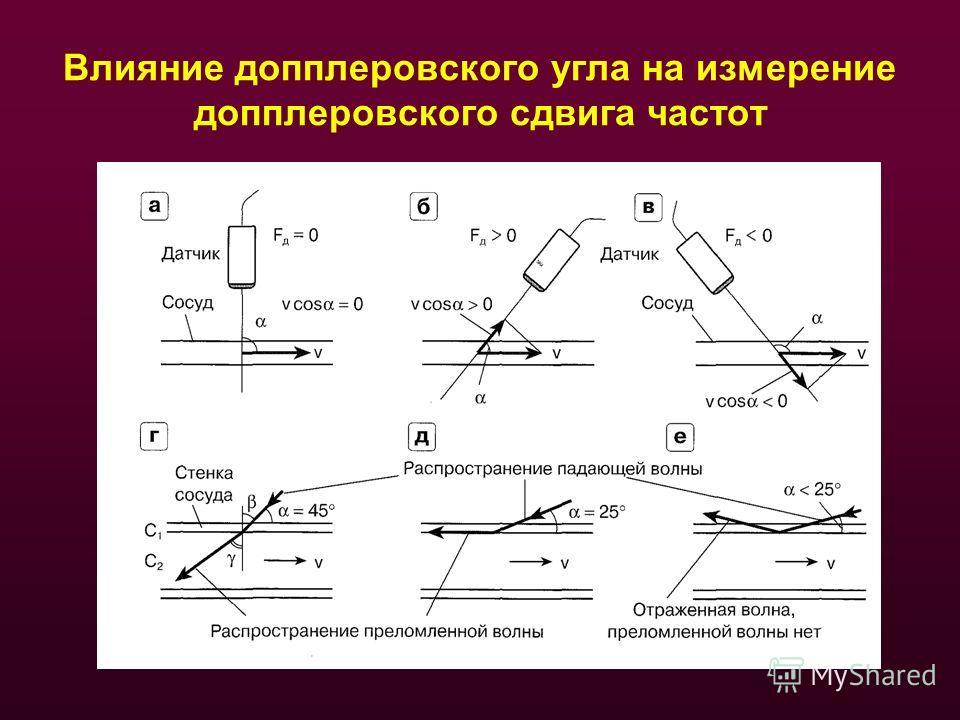 Влияние допплеровского угла на измерение допплеровского сдвига частот
