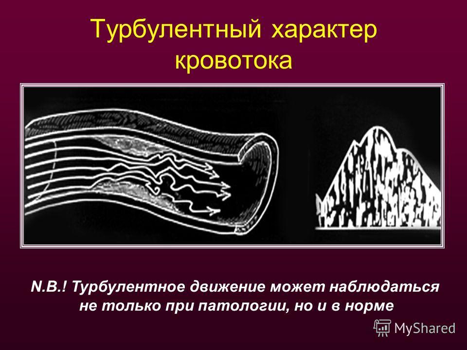 Турбулентный характер кровотока N.B.! Турбулентное движение может наблюдаться не только при патологии, но и в норме