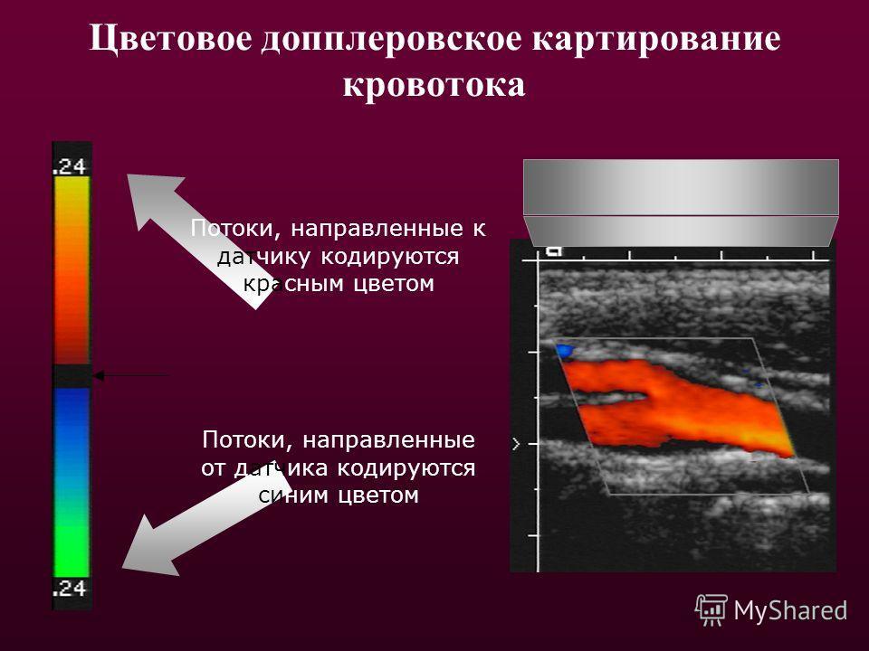 Цветовое допплеровское картирование кровотока Потоки, направленные к датчику кодируются красным цветом Потоки, направленные от датчика кодируются синим цветом