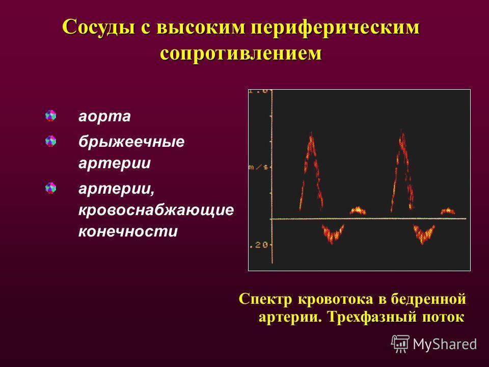 Сосуды с высоким периферическим сопротивлением аорта брыжеечные артерии артерии, кровоснабжающие конечности фазный поток Спектр кровотока в бедренной артерии. Трехфазный поток