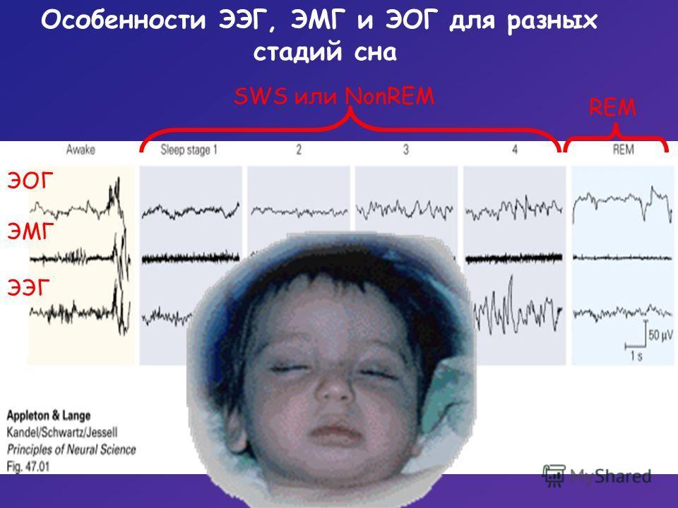 Особенности ЭЭГ, ЭМГ и ЭОГ для разных стадий сна SWS или NonREM REM «вертекс» веретена ЭЭГ ЭМГ ЭОГ