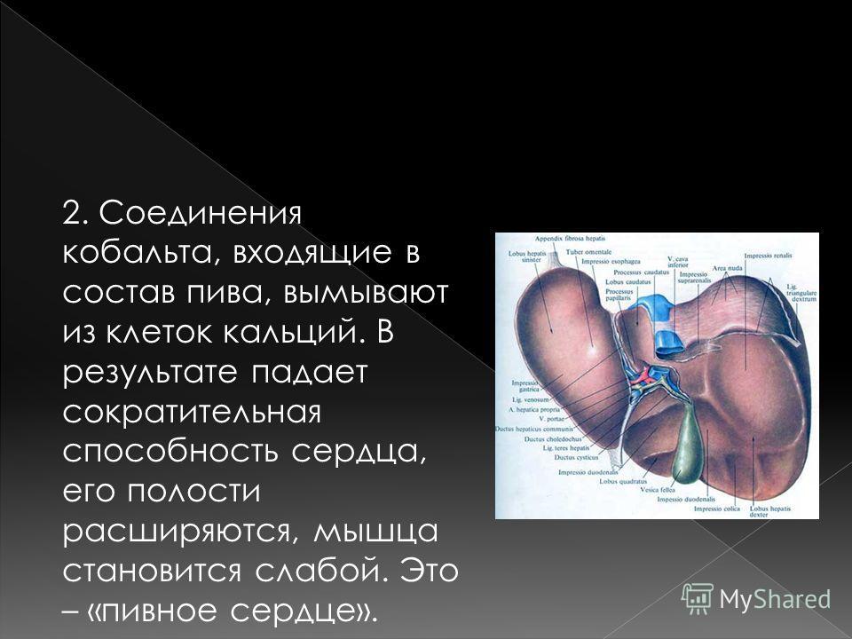 2. Соединения кобальта, входящие в состав пива, вымывают из клеток кальций. В результате падает сократительная способность сердца, его полости расширяются, мышца становится слабой. Это – «пивное сердце».