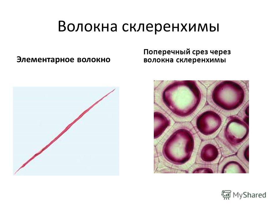 Волокна склеренхимы Элементарное волокно Поперечный срез через волокна склеренхимы
